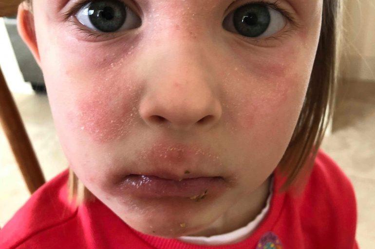 childrens skin eczema homeopathychildrens skin eczema homeopathy