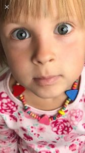 childrens skin eczema homeopathy